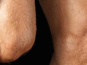 artrose-no-joelho